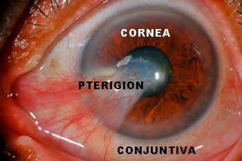 pterigion 2