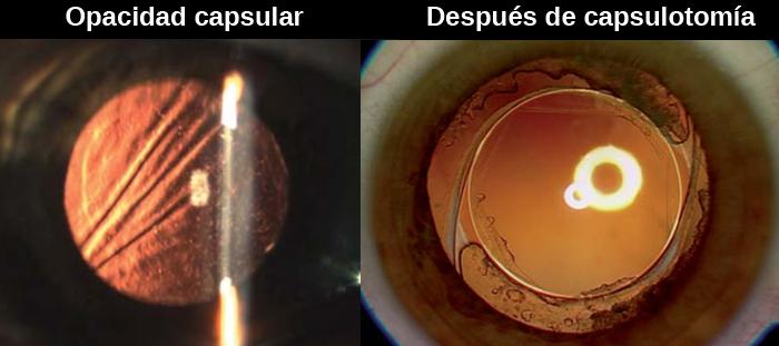 capsulotomia